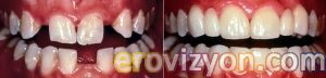 İmplant fiyatları, İmplant tedavisi, implant uygulanan dişler