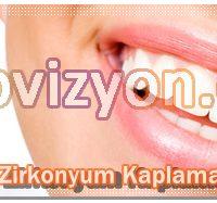 zirkonyum diş fiyatları, zirkonyum maddesi, kaplama porselen