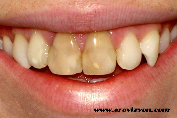 dişler neden sararır, diş sararmasının nedenleri, diş sararmasını önleme