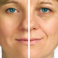 yüz gençleştirme yolları, yüz nasıl gençleşir, yüzü genç gösterme yolları