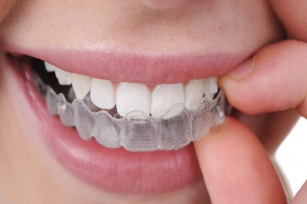 şeffaf diş teli, diş teli nasıl takılır, diş teli takma