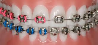 Ortodonti Tedavisi Uygulanabilen Kişiler