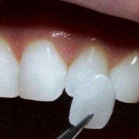 diş estetiği yaptırma, diş estetiği fiyatları ne kadar