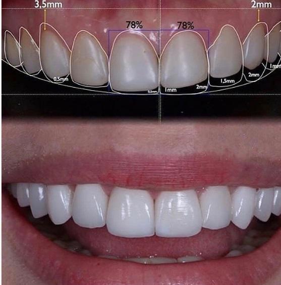 zirkonyum diş yaptırma, zirkonyum diş sağlıklı mı, zirkonyum diş estetiği yapımı