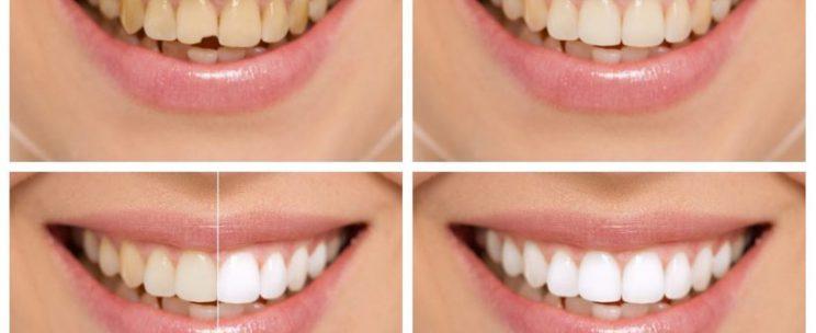 estetik diş hekimi, estetik diş hekimliği