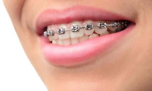 Diş telleri nasıl takılır?