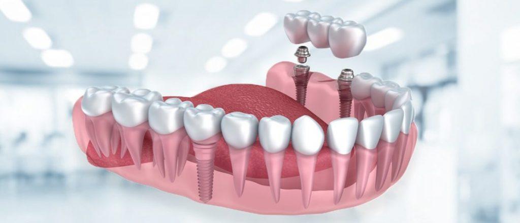 implant yapımı, implant uygulaması, implant çıkarılması