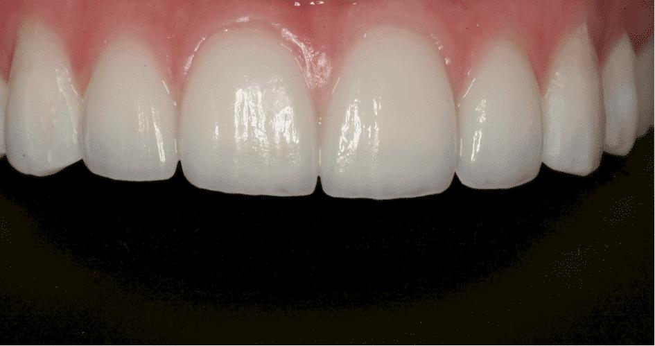 Lamine dişler en etkili gülüşler!