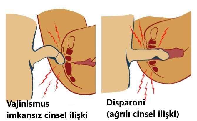 vajinumsus belirtileri, vajinusmus neden oluşur, vajinusmuta erkeğin yapabilecekleri